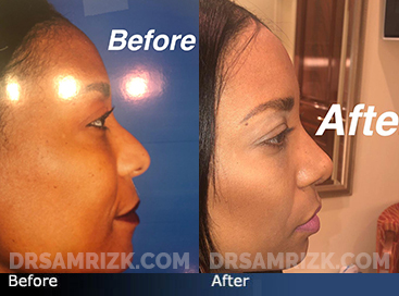 Case 7 - African American (Black) Rhinoplasty - before and after photos - front view